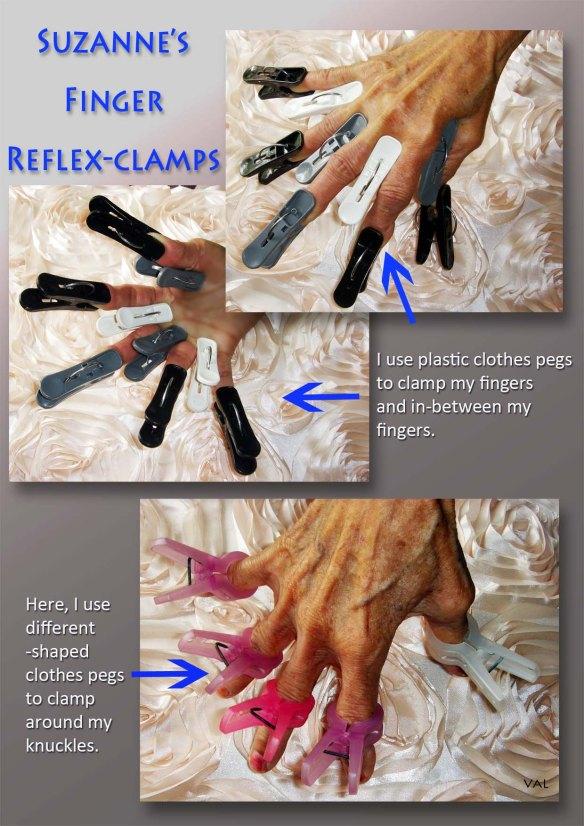 Suzanne's Reflex-Clamping